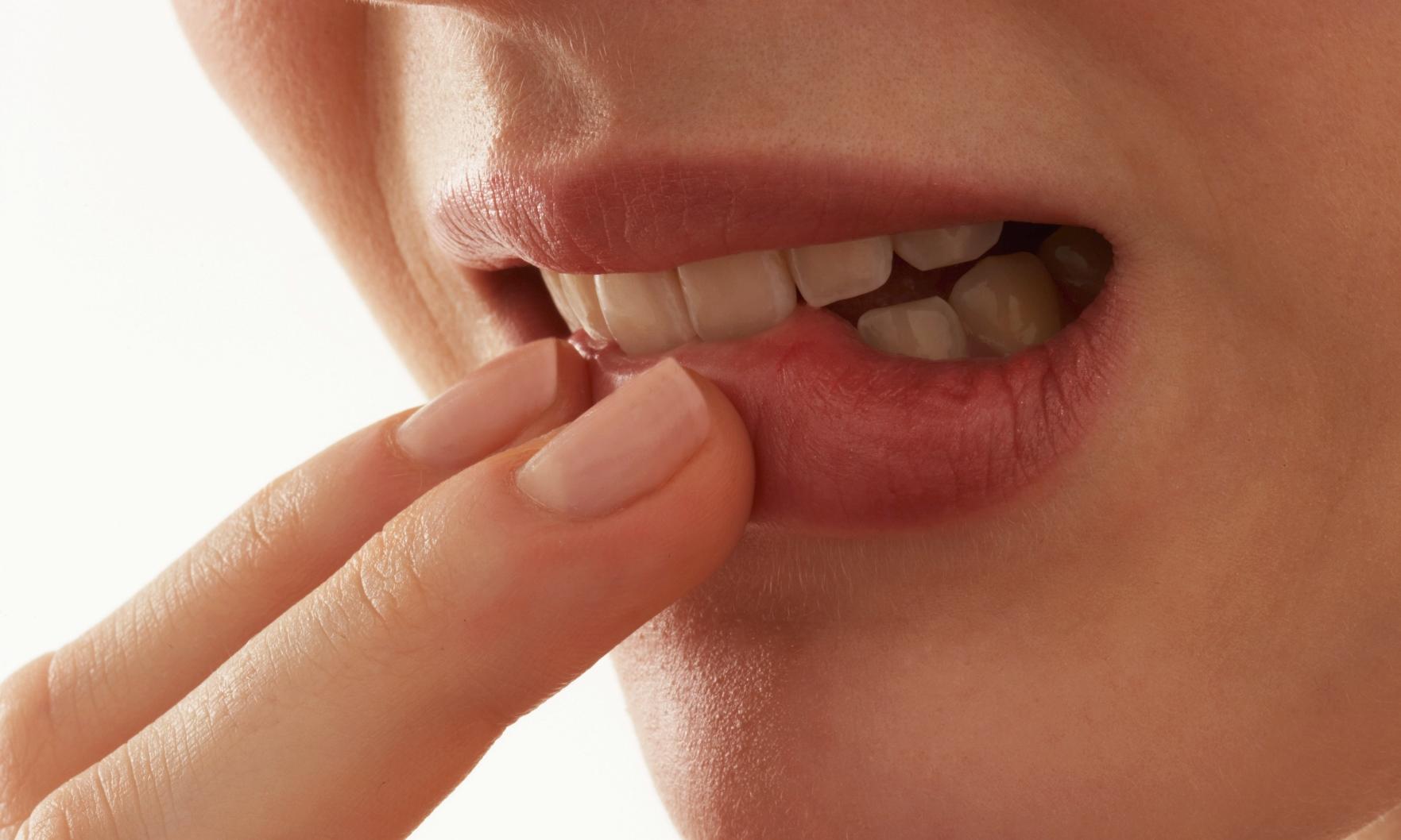 Проявление ВИЧ-инфекции в полости рта. Язык при ВИЧ-инфекции: фото